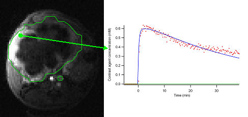 Dynamic contrast-enhanced MRI of orthotopic mouse model of pancreatic cancer.  Inset shows time course of contrast agent concentration, which can be fit to models reflecting blood flow and vessel permeability.
