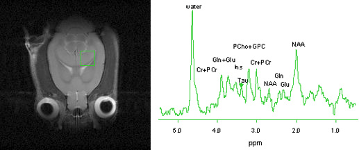In vivo rat brain image (left) and proton metabolite spectrum acquired in hippocampus (right).